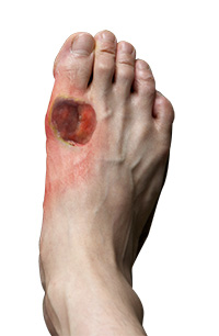 Diabetic Foot and Chronic Wound Care